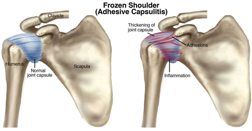 A Practical Guide To Shoulder Pain Learn How To Self Diagnose And