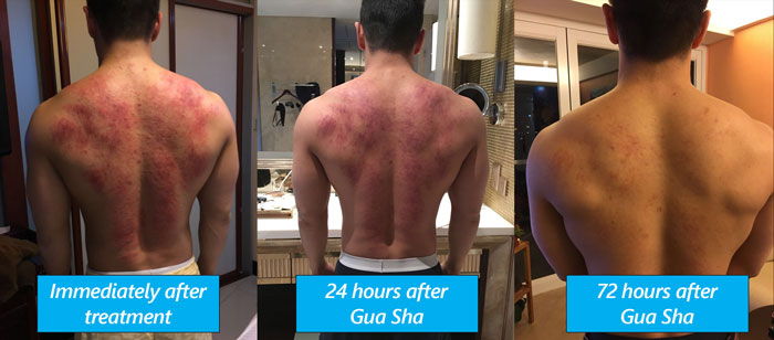 Gua Sha - Before and After