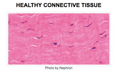 healthy connective tissue
