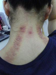 Gua Sha on Neck